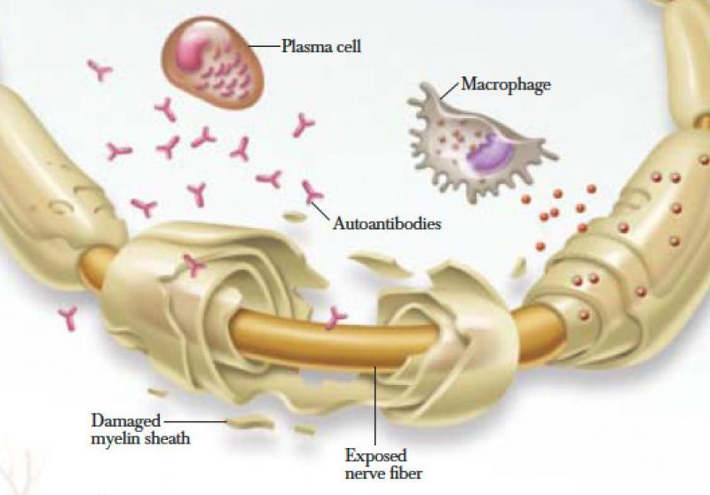 Chronic Inflammatory Demyelinating Polyneuropathy (CIDP) Market